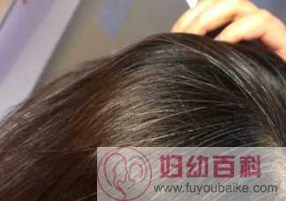 白头发如何缓解或减少 哪些原因头发会变白
